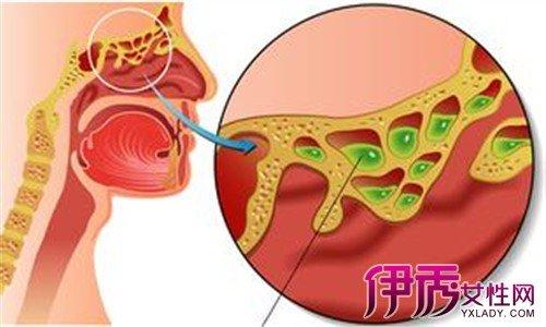 鼻竇囊腫癥狀有哪些? 揭秘鼻腔囊腫的三大癥狀 - 壹讀