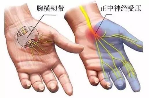 手麻是重大疾病嗎? | 健康一分鐘 - 壹讀
