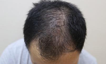 頭頂頭髮稀少是什麼原因?頭頂上頭髮少怎麼辦 - 壹讀