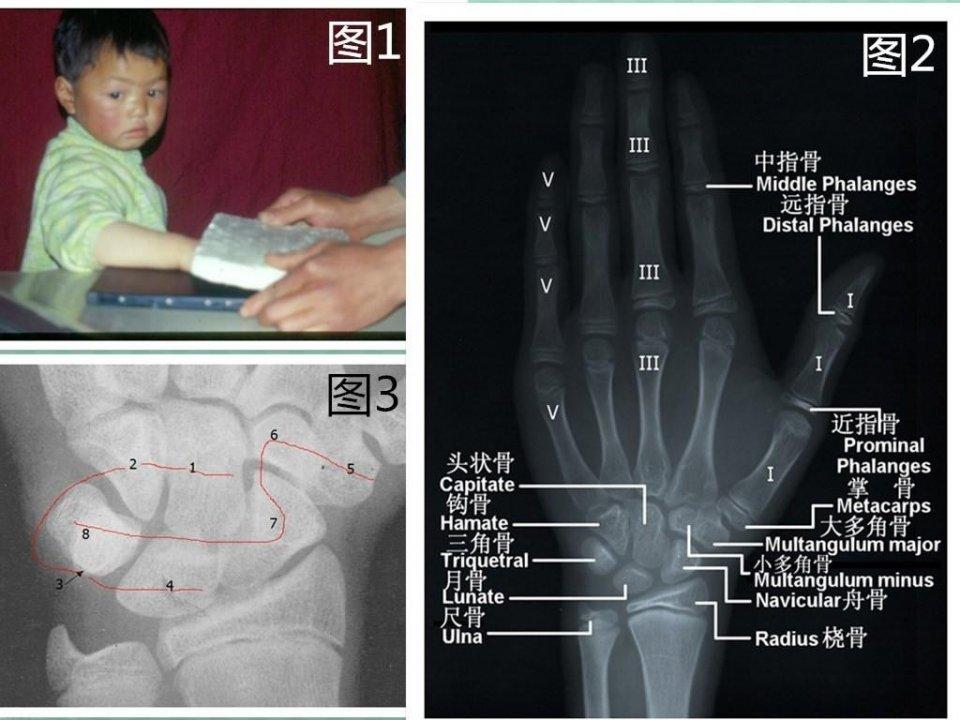 骨齡評定及其對兒童生長發育的指導作用 - 壹讀