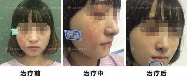 小孩燙傷疤痕怎麼去除?能用雷射治療嗎? - 壹讀