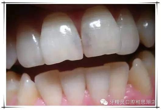 平時不抽菸。為什麼牙齒會變黑了? - 壹讀