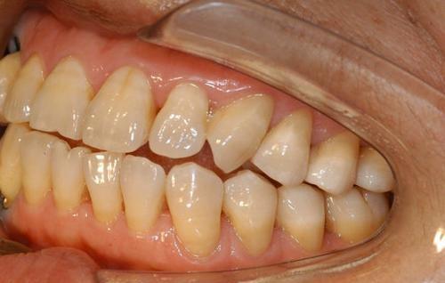 牙齦萎縮,牙根都快露出來了,刷牙時酸痛,該如何挽救? - 壹讀