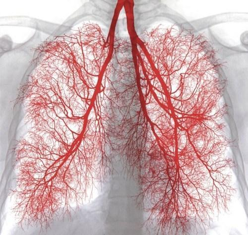 肺腺癌出現腹積水,意味著患者活不久了嗎? - 壹讀