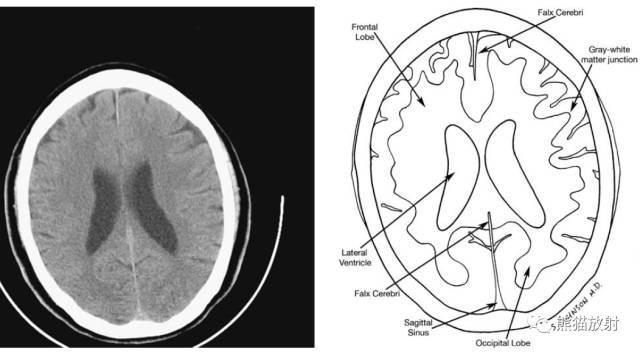 8個要點帶你了解顱腦CT - 壹讀