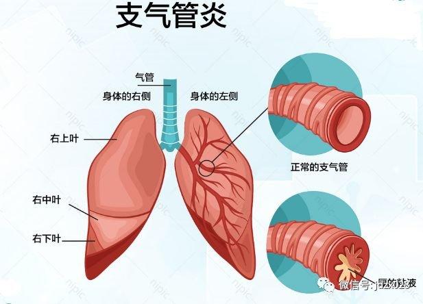 引起支氣管炎的病因主要有哪些 - 壹讀
