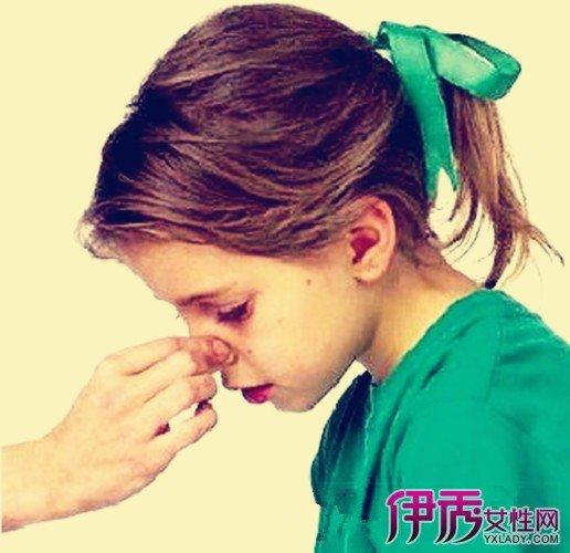 醒鼻涕有血絲是怎麼回事? 幾種有效的方法助你治癒 - 壹讀