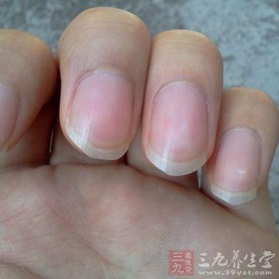 指甲健康 透過指甲可以看出這38種病 - 壹讀