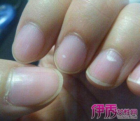 手指甲上有白斑意味著什麼 暗示五類重大隱疾 - 壹讀
