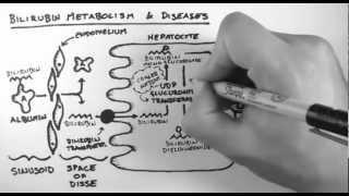 Bilirubin Metabolism & Diseases