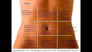 Abdominal Pain Differential Diagnosis