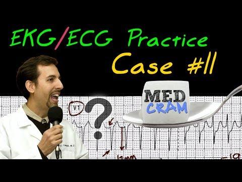 EKG / ECG Interpretation Explained Clearly - Practice Case 11