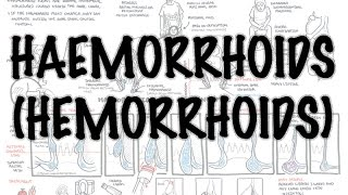 Haemorrhoids (Hemorrhoids) - Overview