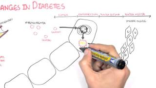 Diabetes Complication and Pathophysiology
