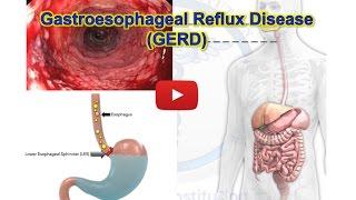 Gastroesophageal reflux disease - GERD