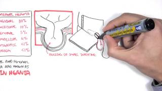 Direct & Indirect Inguinal Hernia