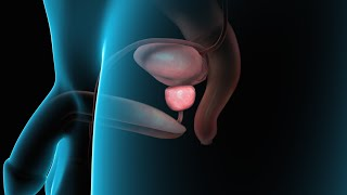 Benign Prostatic Hyperplasia | Nucleus Health