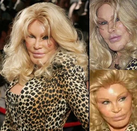 Jocelyn Wildenstein plastic surgery