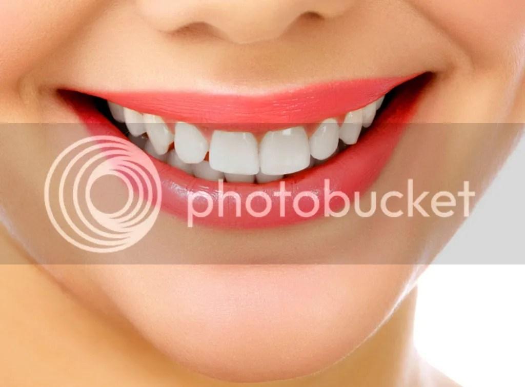 Cara Memutihkan Gigi Dengan Cepat Dan Alami