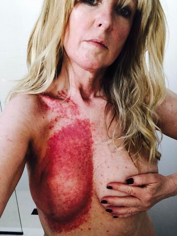 The 50-year-old was left with scars on her breast after surgery