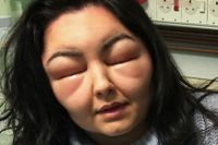 Teen blinded by horrific 'Frankenstein' allergic reaction ...