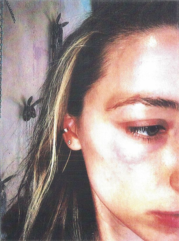 Bruising on Amber Heard's face she claims was inflicted by Johnny Depp