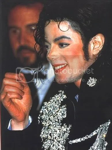 Vitiligo Michael Jackson Skin Disease Paminaki Lovelly