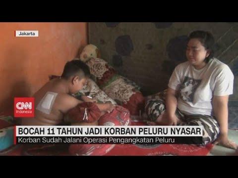 Asyik Bermain, Bocah 11 Tahun Terkena Peluru Nyasar