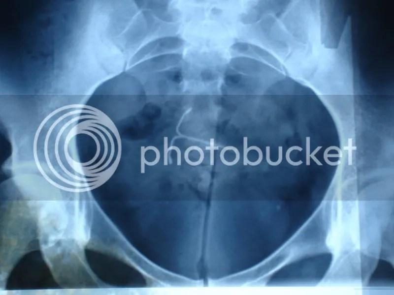 http://i0.wp.com/i49.photobucket.com/albums/f261/J...