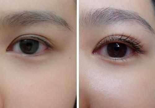眼睫毛掉了會長_睫毛脫落是什么原因_掉眼睫毛是什么原因_眼睫毛掉了還會長嗎