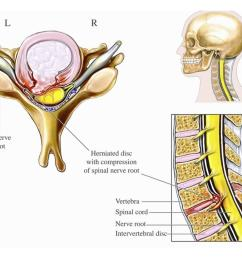 illustration of cervical disc herniation with spinal cord and nerve root impingement print wall art by nucleus medical art walmart com [ 1100 x 826 Pixel ]