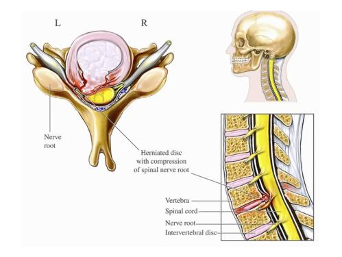 small resolution of illustration of cervical disc herniation with spinal cord and nerve root impingement print wall art by nucleus medical art walmart com