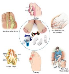 9 in 1 bunion relief kit care bunion corrector treat pain in hallux valgus bunion pads splint bootie protector guard for men and women  [ 1024 x 1024 Pixel ]