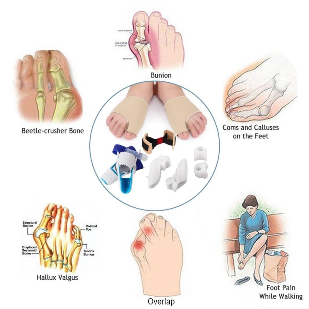 medium resolution of 9 in 1 bunion relief kit care bunion corrector treat pain in hallux valgus bunion pads splint bootie protector guard for men and women