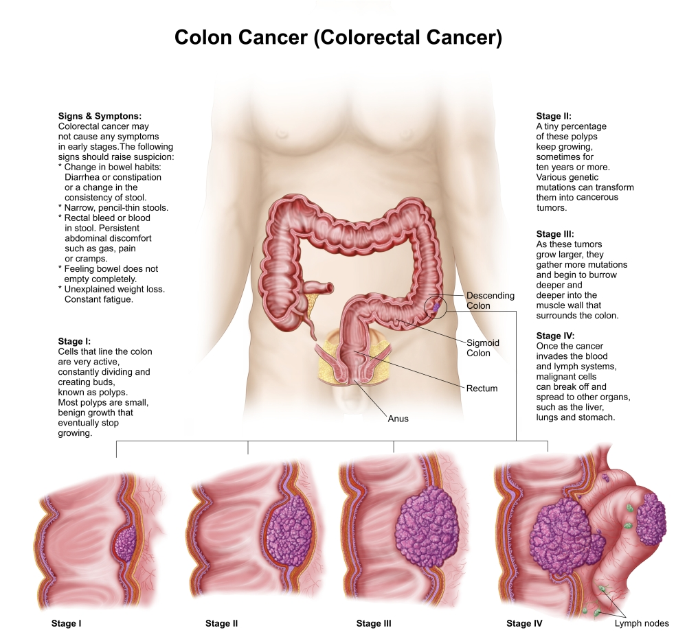 medium resolution of medical illustration depicting the different stages of colon cancer canvas art stocktrek images 29 x 27 walmart com