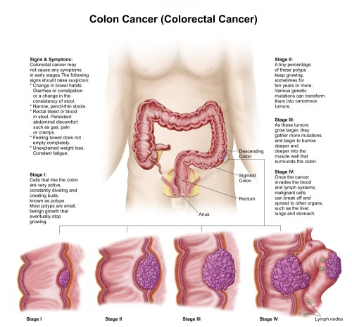 small resolution of medical illustration depicting the different stages of colon cancer canvas art stocktrek images 29 x 27 walmart com