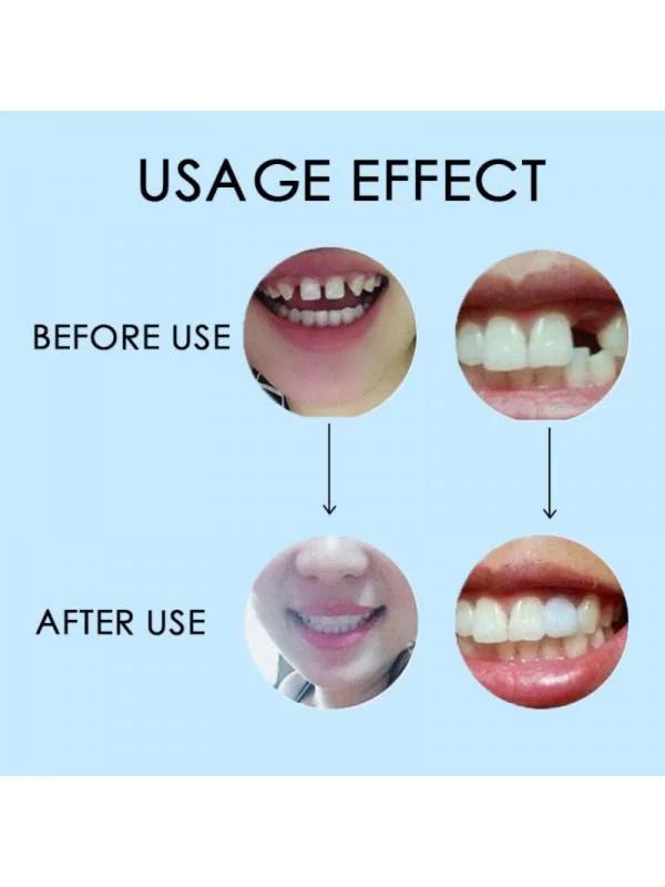 Tooth Repair Kit Walmart : tooth, repair, walmart, Temporary, Missing, Tooth, Repair, Solid, Denture, Adhesive, Walmart.com