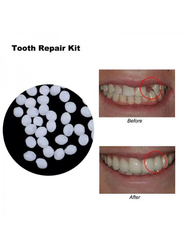 Tooth Repair Kit Walmart : tooth, repair, walmart, EleaEleanor, Temporary, Missing, Tooth, Repair, Teeth, FalseTeeth, Solid, Denture, Adhesive, Walmart.com