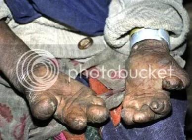 manos leproso