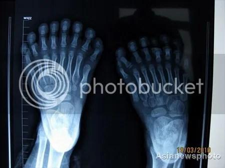 Manusia dengan jumlah jari terbanyak