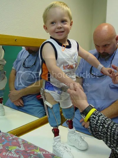 Sungguh ceria raut  wajahnya, walupun keadaan anak  kecil ini menurut orang kebanyakan  memiliki kekurangan