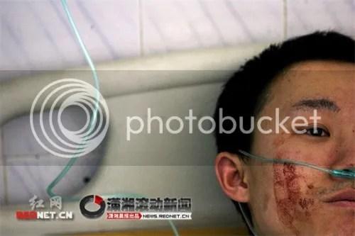 Zhang terbaring dirumah sakit dan menolak diobati melainkan  meminta dokter segera merubah kelaminnya