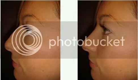cosmetic surgery brisbane