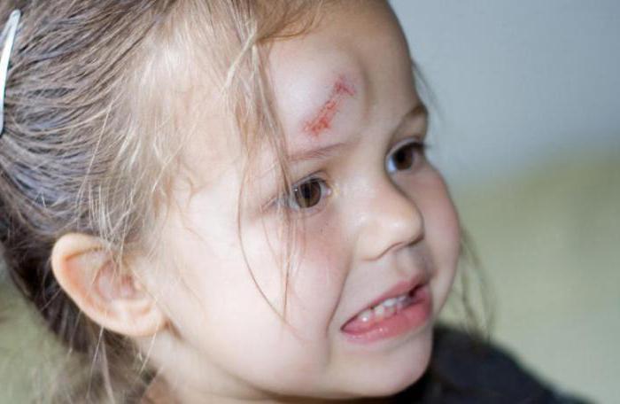 ضرب الطفل رأسه ما الذي تبحث عنه لماذا الطبيب في الاتصال عواقب