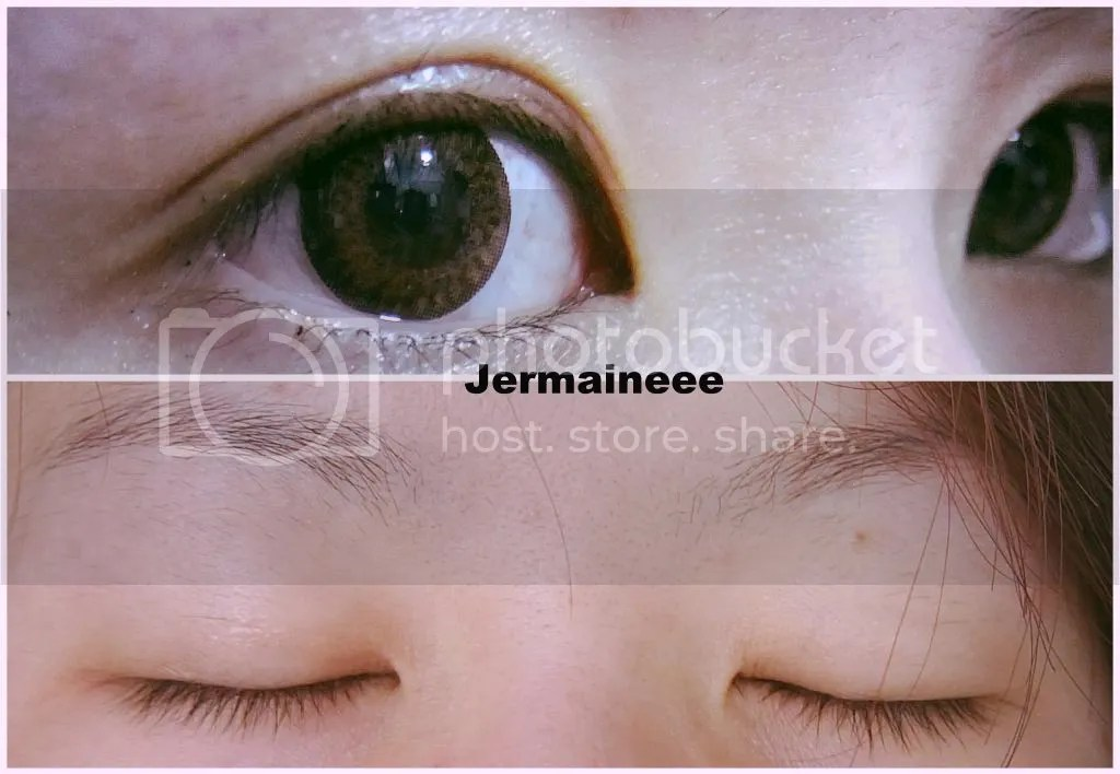 double eye lids surgery – Jermaineee