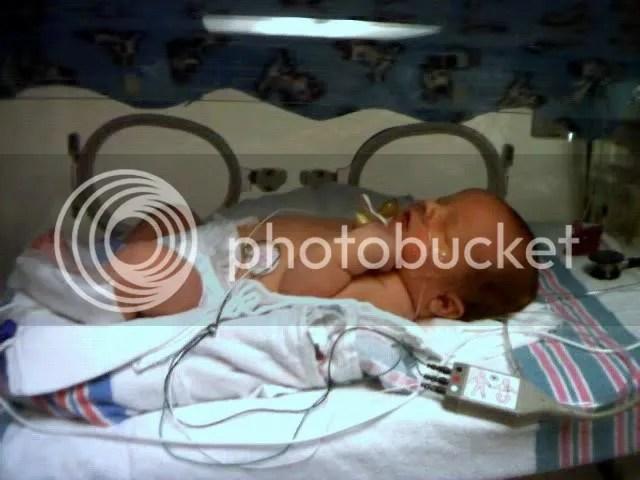 Noah in Incubator