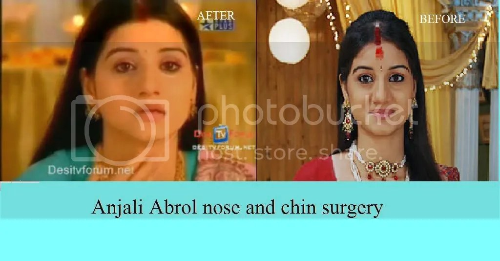 nose job tip