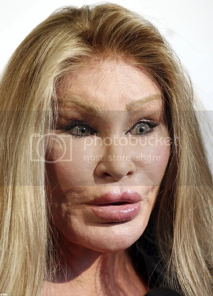 top ten worst plastic surgery disasters
