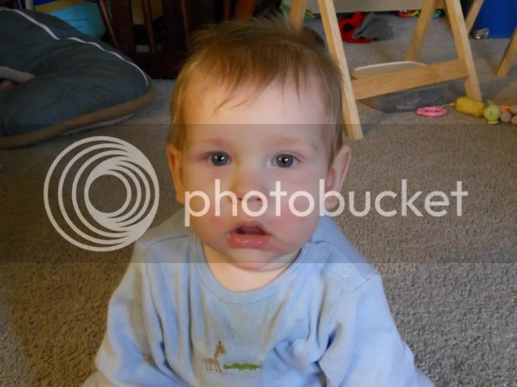 Gluten Allergy Rash On Face | www.galleryhip.com - The Hippest Pics