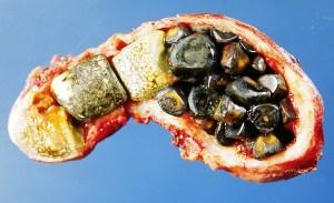 gallstones1